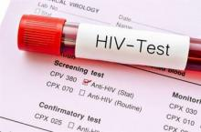 """vile of blood with """"HIV Test"""" label on it"""